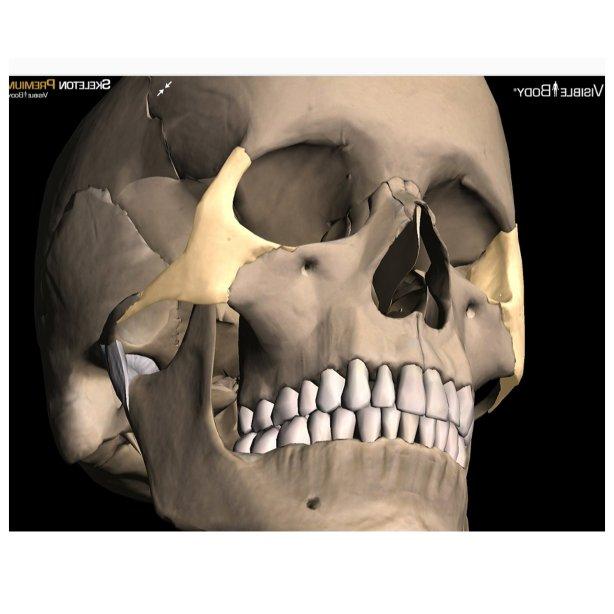 Zygomatic Bone Fracture