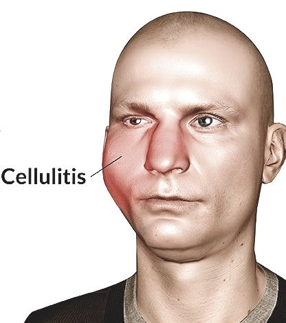 Cellulitis of the Face