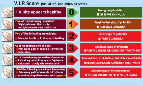 Infusion Phlebitis Score